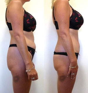 Lipo Light Can Deliver Effective Results In Just One Treatment. However,  Sustained Results Take Place When Continued LED Light Therapy Is Used In ...