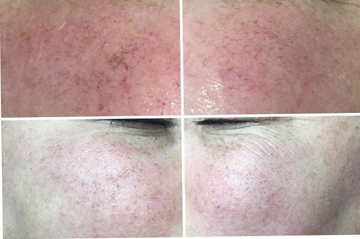 Thread Vein Removal ND YAG - Resolve Laser Skin Clinics