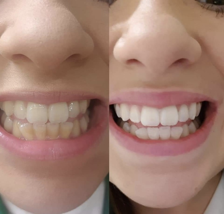 Teeth Whitening Bournemouth Ringwood Cosmetic Tooth Whitening