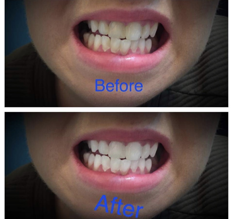 before and after laser tooth whitening