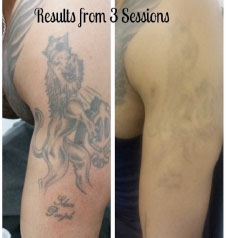 Laser Tattoo Removal in Bournemouth, Poole, Dorset, Ringwood & surrounding areas